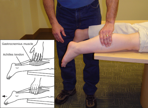 Achilles Tendon Tear Physical Therapy